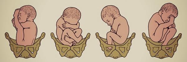 Тазовое предлежание плода на 34 неделе беременности