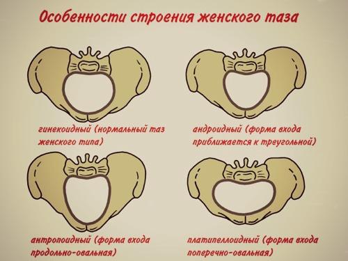 Размеры таза влияют на течение беременности и роды